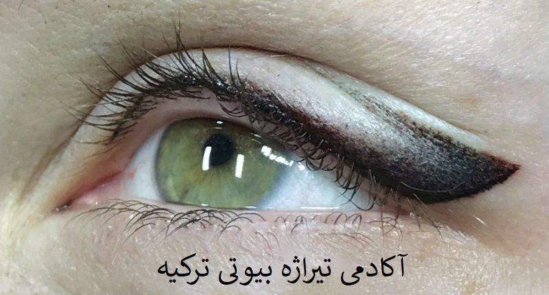 فیکانتور چشم