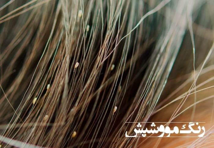 شپش-موی-سر